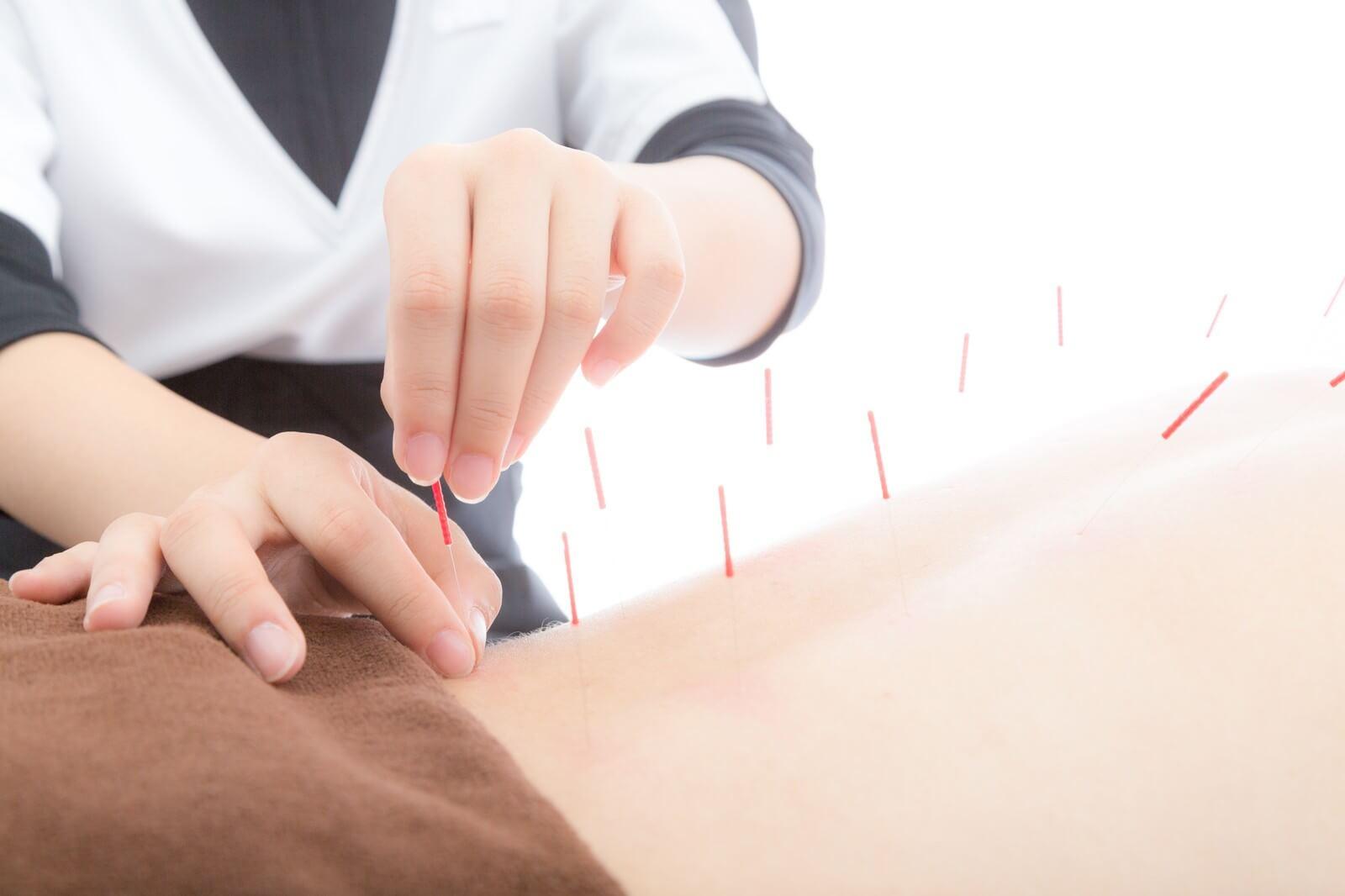 鍼灸の可能性
