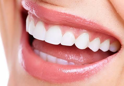 美容や歯の問題を解決してくれる「あいうべ体操」